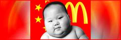 Causas de la Obesidad -