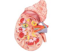 Kidney Disease May Boost Odds of Infection