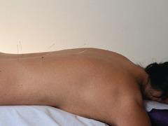 New Nerve Stimulation Technique Might Relieve Back Pain