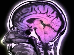 'Rerouting' Brain Blood Flow: Old Technique Could Be New Advance Against Strokes