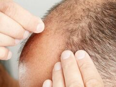 Bald Truth: Mouse Study May Get at Roots of Hair Loss